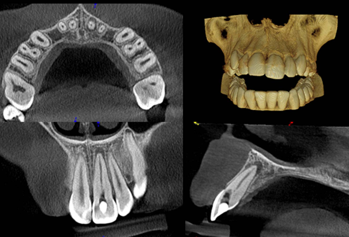 cbct citydental